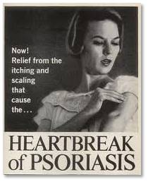 Psoriasis is a chronic skin ailment. When it flares up, the patches, which can appear anywhere on the body, range in severity from a few itchy spots to bleeding lesions. Eeeew! It also hurts. Personally, mine comes on during the cold, dry winter months, but it can occur any time of year. About 75% of sufferers get their first outbreak under age 40.