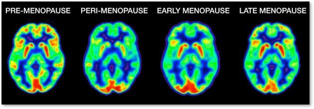 Dr. Lisa Mosconi, glucose levels, women's brains, women, menopause, perimenopause, The Wall Street Journal, Sumathi Reddy,